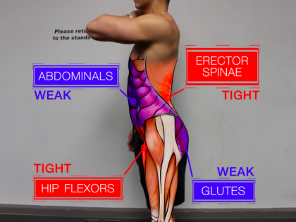 Why Poor Glute and Core Activation/Strength Could Be Harming Your Fitness Progress